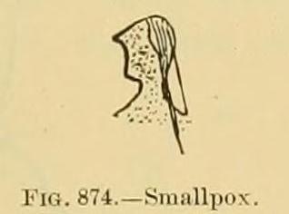 smallpox american indians 2