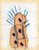 smallpox american indians 5