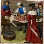 Daily History Picture: Medieval Autopsy
